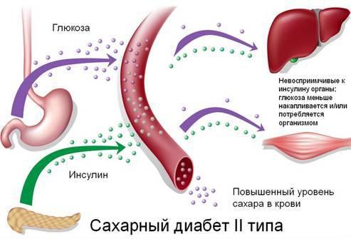 Холестерол препарат