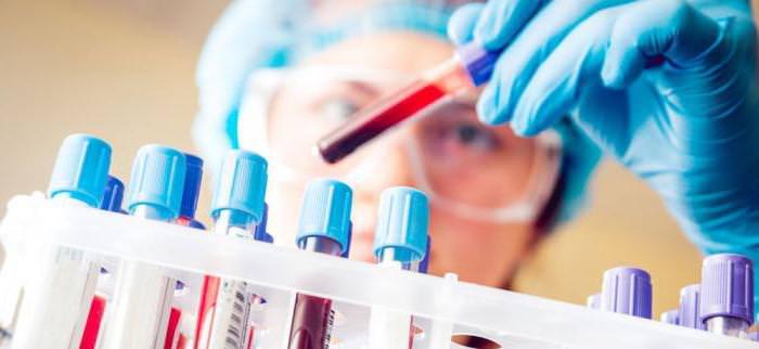 Что влияет на результат общего анализа крови