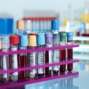 Биохимический анализ крови что такое ггтп