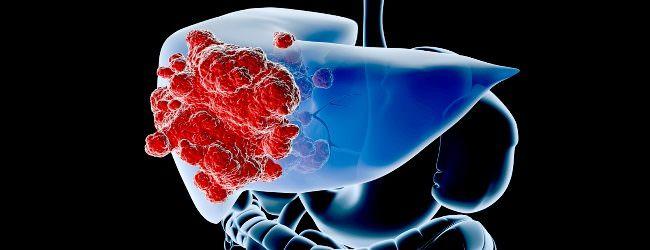 Афп анализ крови что означает для мужчины