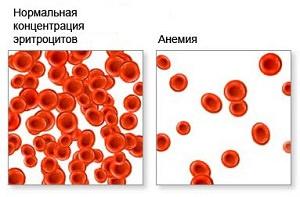 Симптомы сниженного гемоглобина