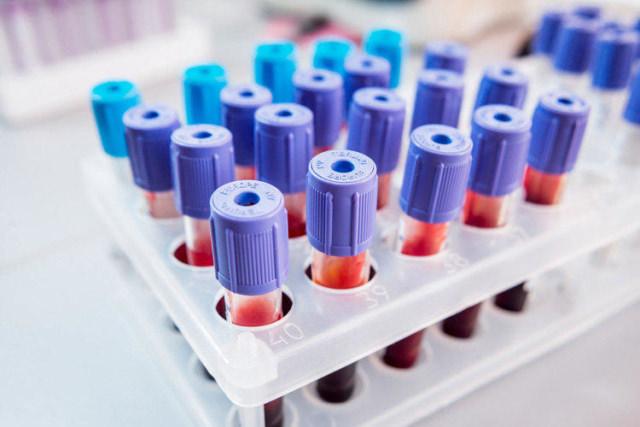 Анализ крови и норма содержания кальция в