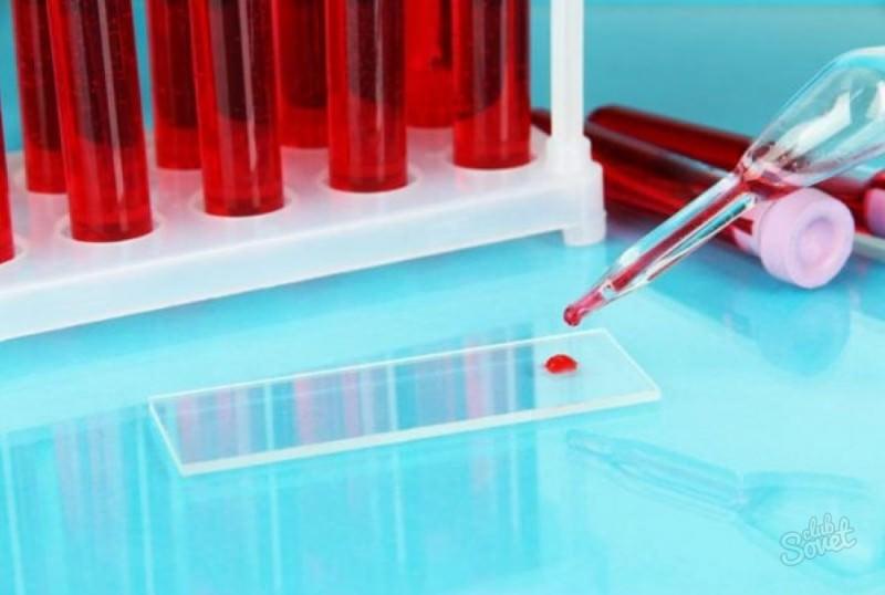 Мочевина в крови у мужчин после 50 лет