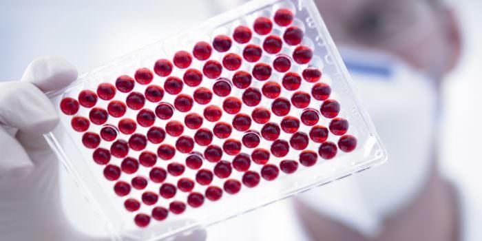 Результаты анализов крови алат и асат