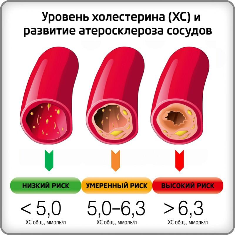 Анализ крови mch что