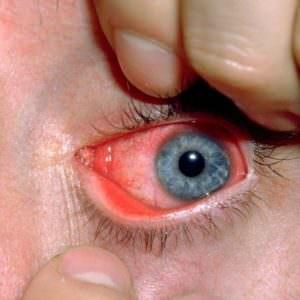 Кровь на хламидиоз результаты анализов