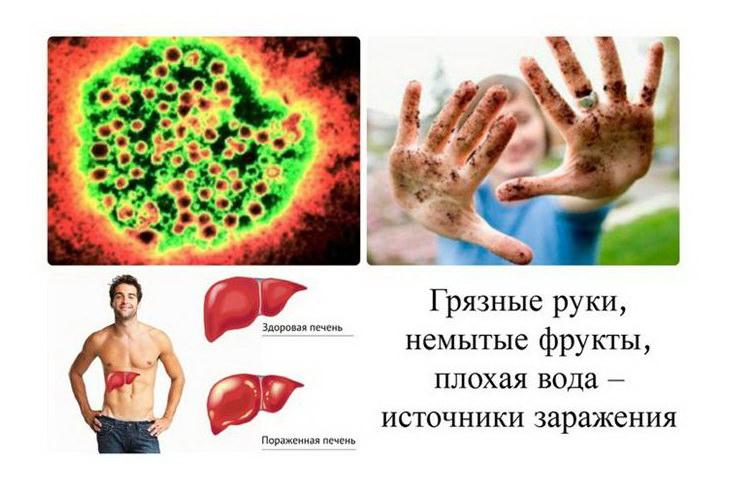 Санпин вирусный гепатит в