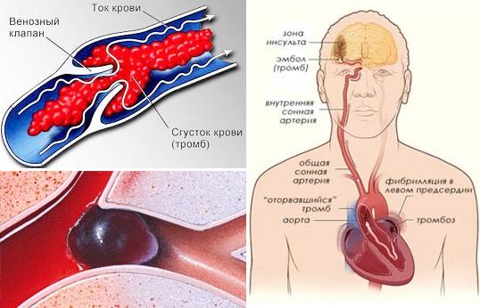 Мно анализ крови фибриноген