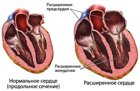 Дилатация правого желудочка сердца что это такое — Cardio