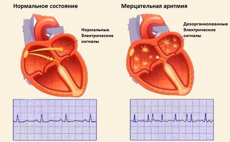 Прижигание на сердце от аритмии отзывы
