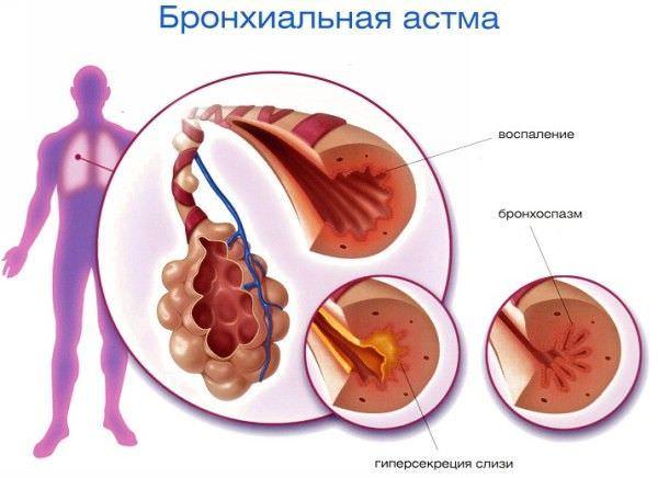 Патогенетические основы бронхиальной астмы