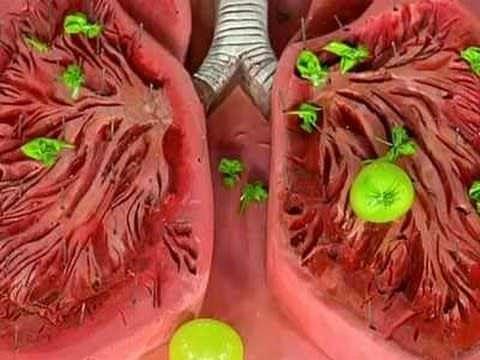 Рисунок. Воспаление органов дыхательной системы