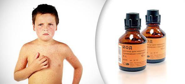 Следует избегать попадания йода на слизистые ткани и поврежденные участки кожи
