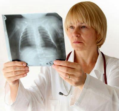 Если кашель не проходит больше месяца – это серьезный повод для обращения к врачу