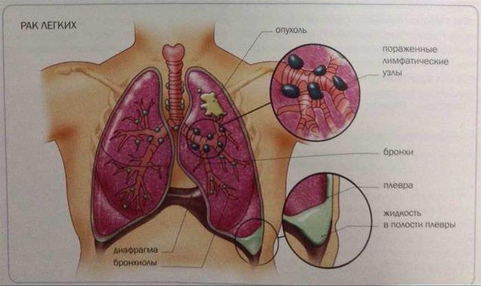 К сожалению, такие симптомы, как боль за грудиной и сухой кашель свидетельствуют о серьезной онкопатологии. Вот почему так важно не пускать все на самотек!
