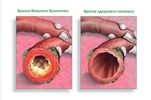 Бронхиальный кашель с белой мокротой