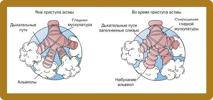 Фото легких во время приступа и вне приступа астмы