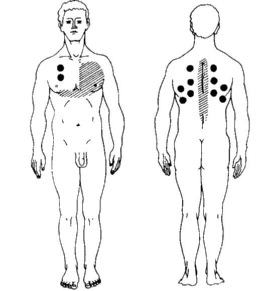 Горчичники на коже в проекции легких призваны улучшить кровообращение в органах дыхательной системы и победить кашель.