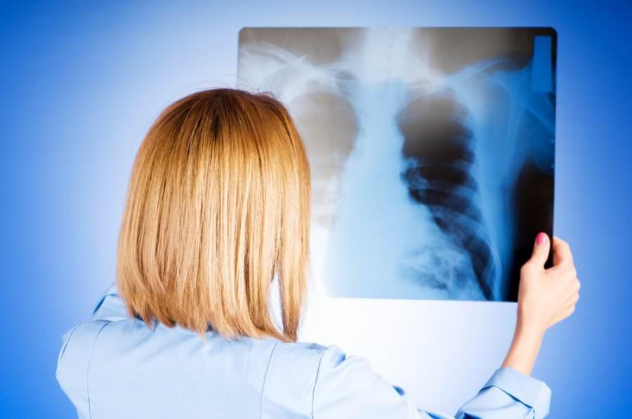 Иногда длительная лихорадка, слабость, долго не проходящий сухой кашель – симптомы воспаления легких. Обязательно обратитесь к врачу для исключения этого заболевания.