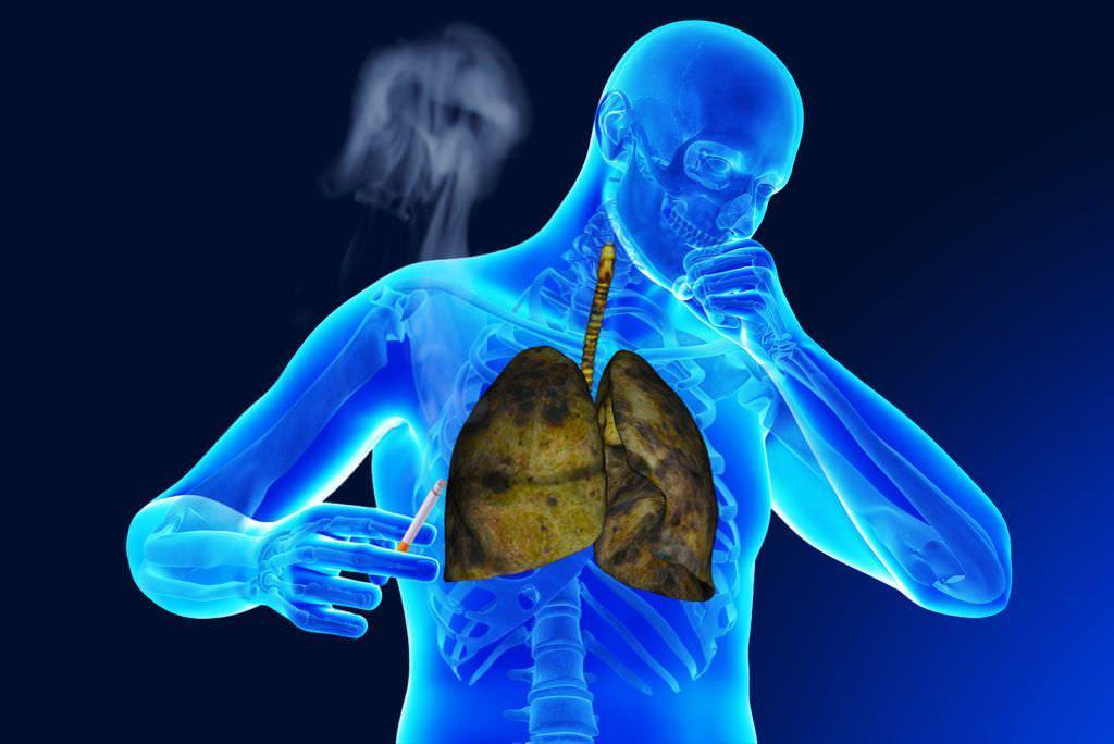 Кашель курильщика – лечение народными средствами: отвары и настои