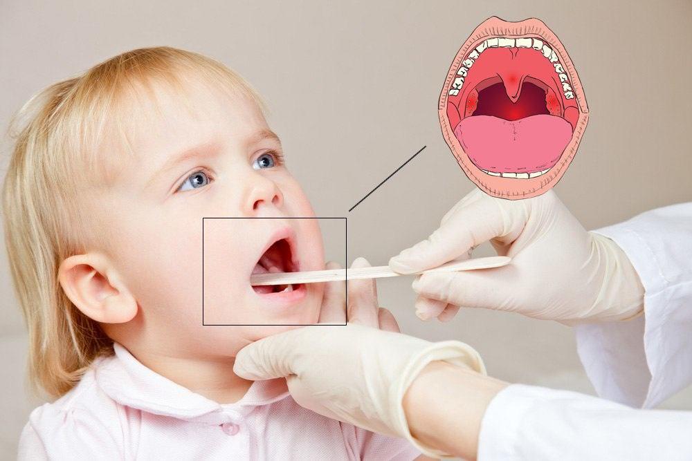 Кашель при аденоидах обычно бывает у детей в возрастной группе от 3 до 10 лет.