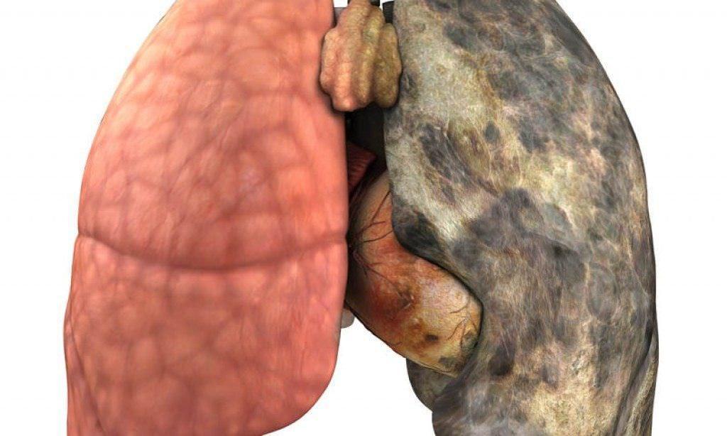 Курение негативно отражается на дыхательной системе