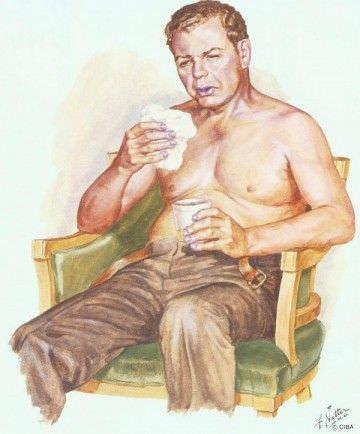 На фото изображен типичный больной с длительно протекающим хроническим бронхитом.