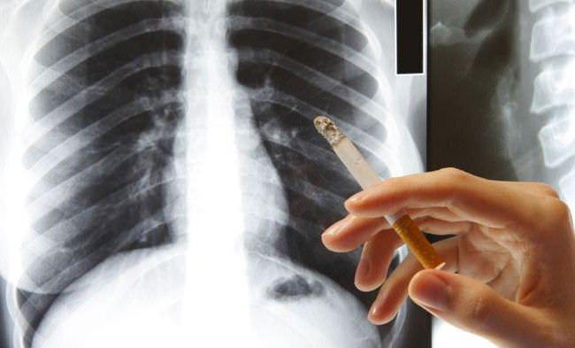 На рентгене легких курильщика отчетливо видно, что пагубная привычка приводит к воспалению органов дыхания.