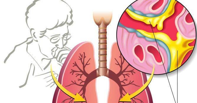 Накапливание мокроты в дыхательных путях