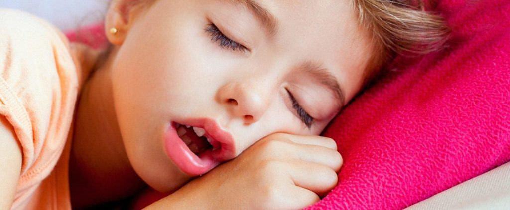 При аденоидите ребенок не закрывает ротик ни днем, ни ночью. При этом идет деформация лицевых костей. Формируется так называемый аденоидный тип лица, как на фото.