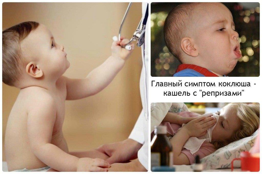 При кашле необходимо малыша показать специалисту