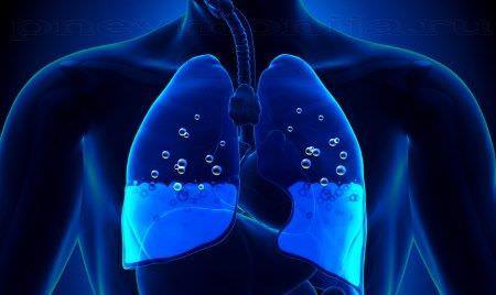 Развитие отека легких при патологии сердца