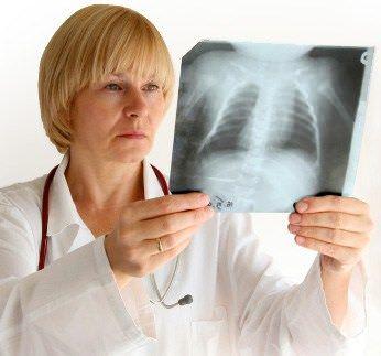 Рентгенография грудной клетки – один из достоверных методов диагностики