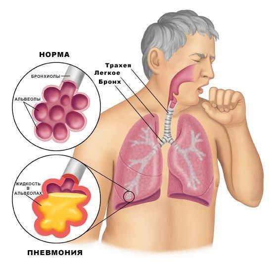 Симптомом воспаления легочной ткани служит кашель с мокротой – лечение у взрослых и детей должно быть комплексным и направленным на возбудителя инфекции.