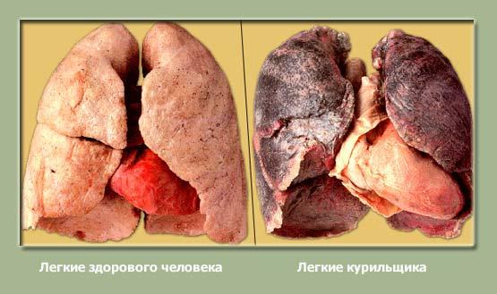 Смолы, содержащиеся в сигаретах, оседают на легких. Вследствие этого легкие видоизменяются, и уже не могут полноценно выполнять свои функции.