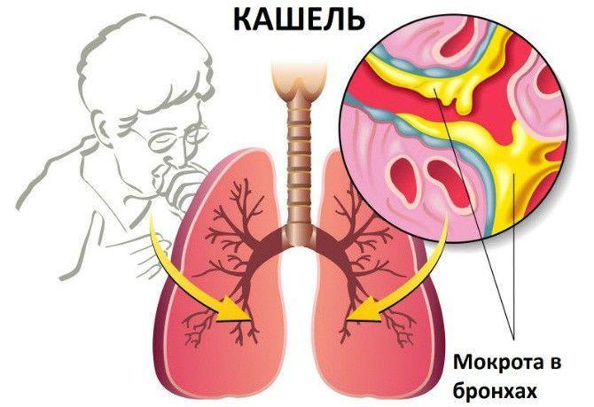 Сухой и влажный кашель отличия – скопление мокроты в дыхательных путях и ее выделение.