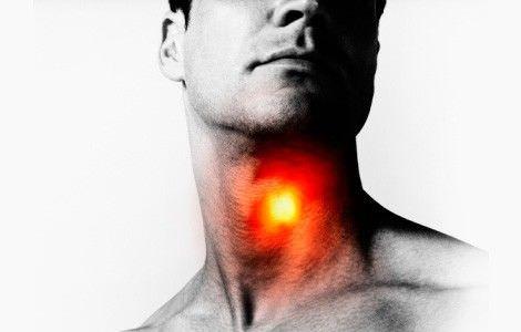 Сухой кашель, першение в горле характерно практически для всех форм трахеита