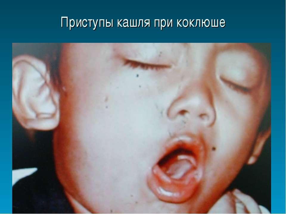 Свистящий кашель у ребенка при бронхите thumbnail
