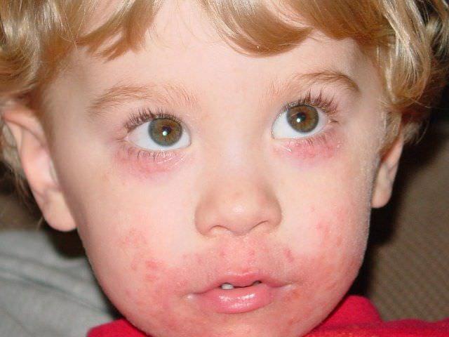 Если у ребенка появление участков покраснения и сыпи (как на фото), сопровождаются сухим саднящим кашлем, то можно предположить, что это аллергическая реакция.