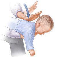 Фото: что делать, если ребёнок поперхнулся.