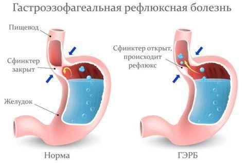 Развитие рефлюкс-эзофагита