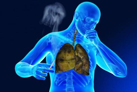 Курение - частая причина патологий дыхательных путей