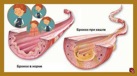 Пример состояния легких