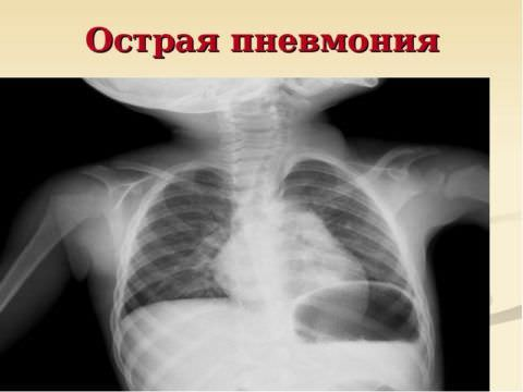 Возможно развитие пневмонии