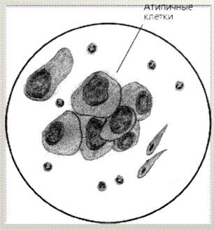 Клетки с признаками атипических изменений