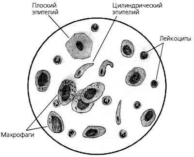 Клетки цилиндрического мерцательного эпителия