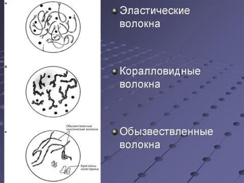 Обызвествленные эластические волокна