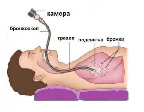 Бронхоскопия - одно из показаний к приему лекарственного средства