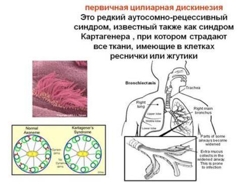 Противокашлевые медикаменты периферического действия нельзя применять при цилиарной дискинезии