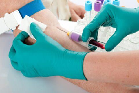Важно контролировать показатели общего анализа крови